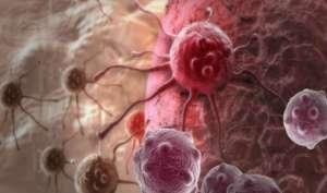 Mélanomes-du-cancer